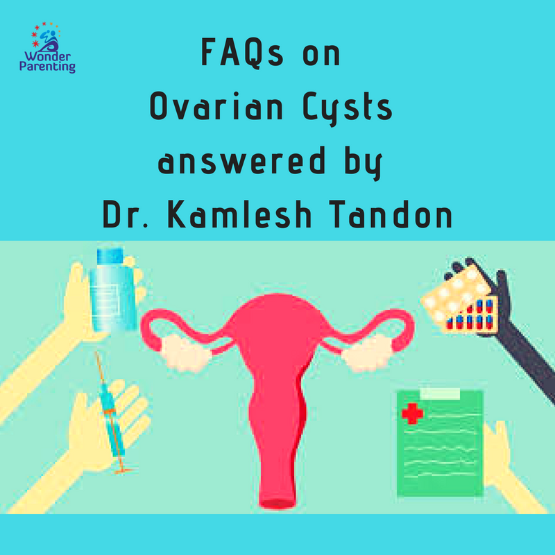 FAQs on Ovarian Cysts answered by Dr. Kamlesh Tandon