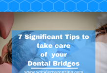 7 Significant tips to take care of your dental bridges
