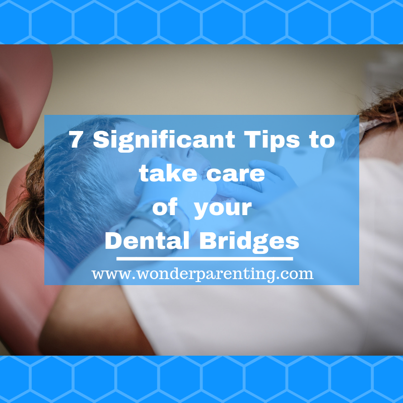 7 Significant tips to take care of your dental bridges-wonderparenting