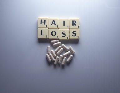 male-hair-loss-wonderparenting